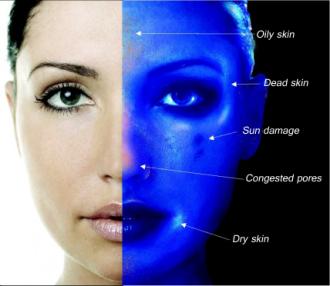 Skin Analysis katikati