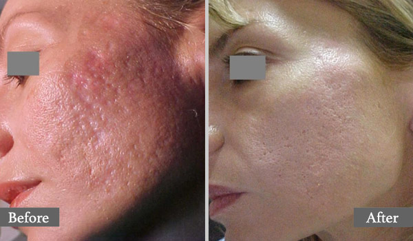 Dermapen Collagen Induction Therapy - Dreamers Beauty Clinic