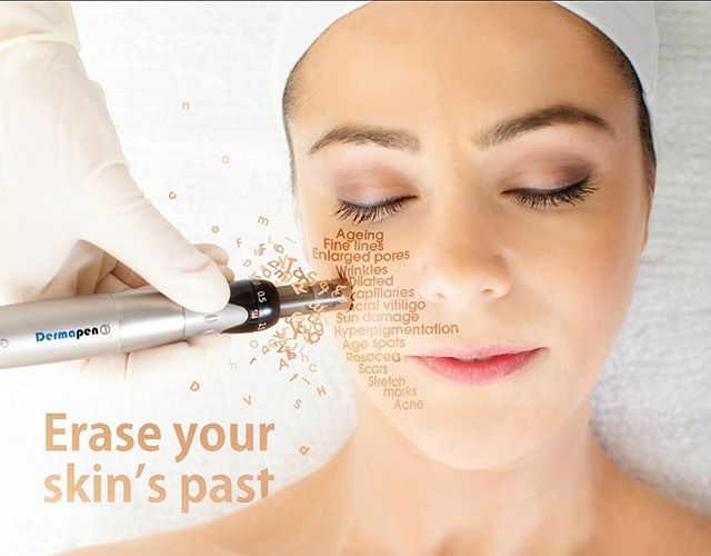 Dermapen-Collagen-induction-Katikati